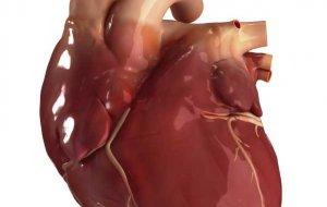 Пермские хирурги спасли пациента с «шаровидным» сердцем