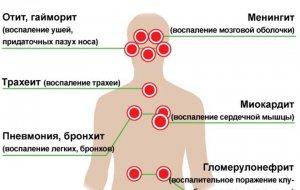 Наиболее эффективным средством профилактики гриппа является современная вакцина
